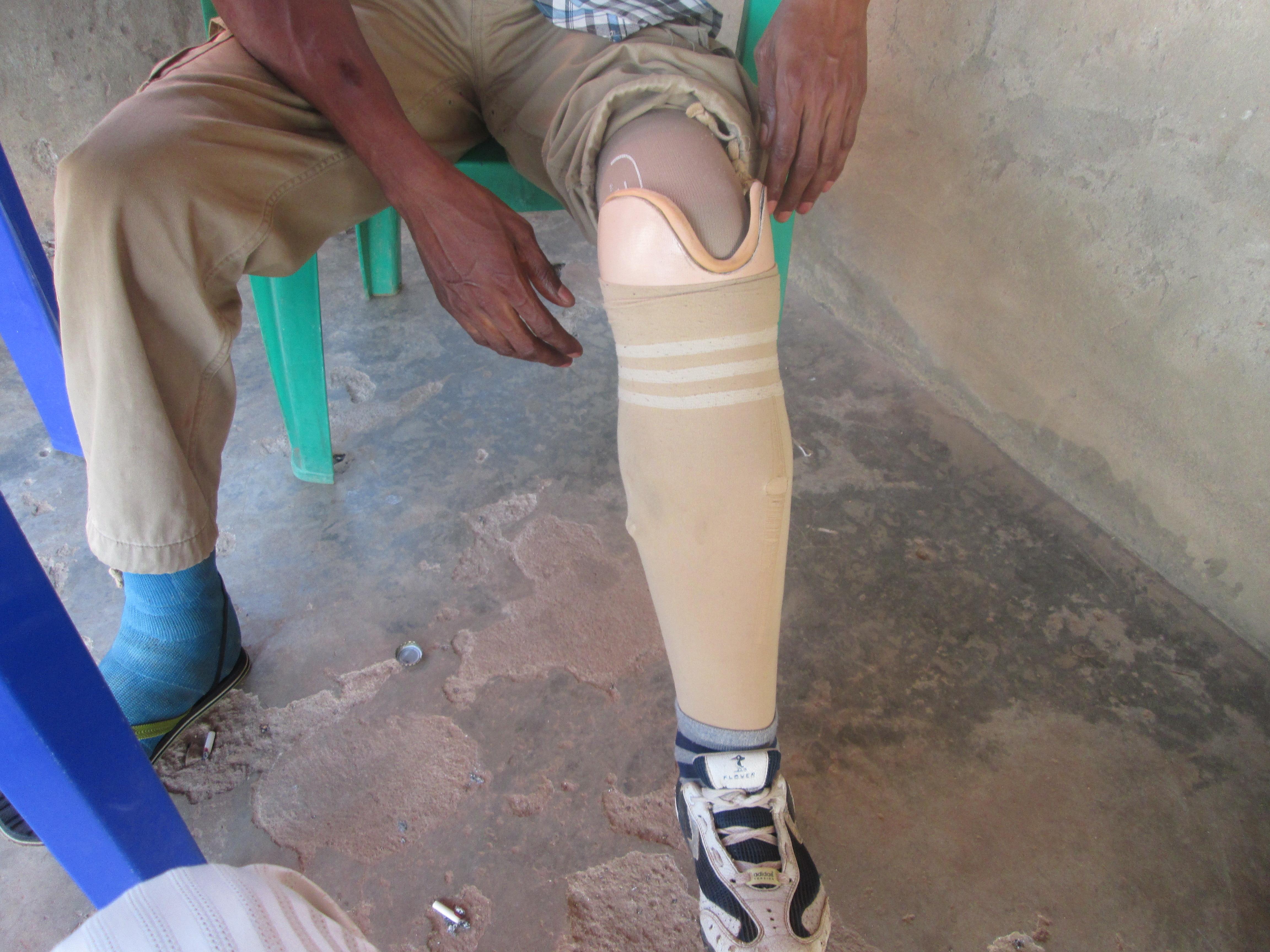 Nwibani-Prosthesis 3