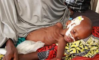 Malnutrition killing Katsina children over councils' 'refusal' to release funds