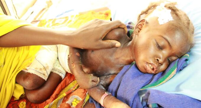 UNDERCOVER: In Borno, children are dying at IDP camps, foodstuffs are 'disappearing' at SEMA store