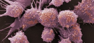 Study: Men with fertility issues more likely to develop prostate cancer