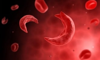 HURRAY! First successful 'cure' of sickle cell recorded in France