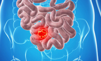 Prolonged use of antibiotics could lead to bowel cancer, study finds