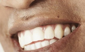 Five ways to get glistening white teeth without breaking the bank