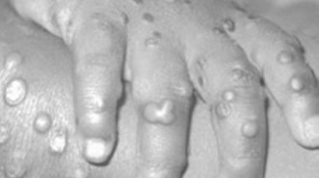 12 things to know about monkeypox