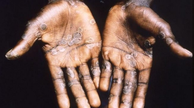 Monkeypox spreads to 11 states — 74 suspected cases recorded