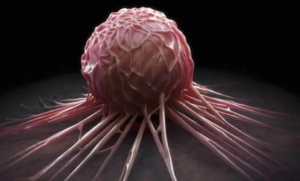 Scientists team up to uncover earliest symptoms of cancer