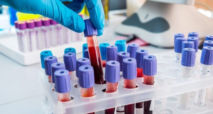 Game Changer: UK begins trial of blood test that can detect 50 types of cancer