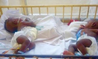 Doctors separate conjoined twins at UniAbuja hospital