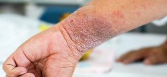 Study: People with eczema at higher risk of suicidal thoughts, attempts