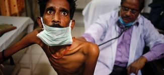 India launches vaccine trial to prevent tuberculosis
