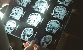 Mental health genetics: Solutions for African challenges