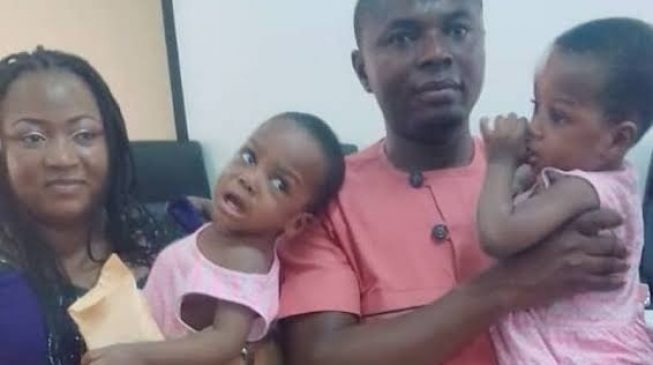 National Hospital discharges separated conjoined twins
