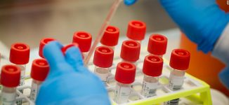 Another WHO staff member tests positive for COVID-19 in Bauchi