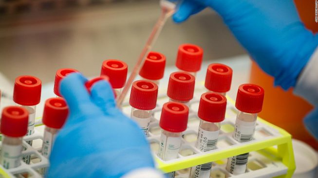 Kogi finally sets up COVID-19 testing lab, Infectious Disease Centre
