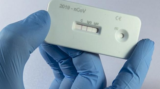 Nigeria's COVID-19 tests hit 8,000 — but still far below Kenya, Ghana
