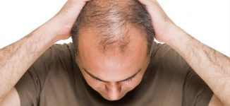 Bald men at greater risk of severe case of COVID-19, study claims