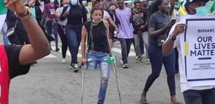 Nigerians raise N3.7m in four hours to buy prostethic leg for #EndSARS protester