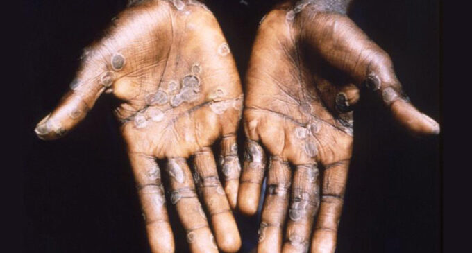 Lagos, Rivers, Delta worst hit as NCDC records 59 suspected monkeypox cases